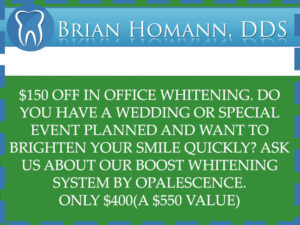 Special Offer 150$ Off In Office Whitening